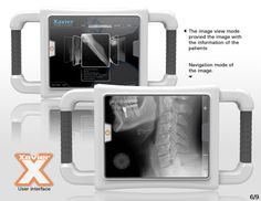 Xavier portable X-ray concept design products - design window - the most professional design information and services portal