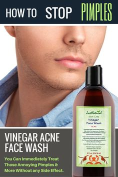 Acne Vinegar Face Wash / This unique non soap acne cleanser is made to fight blemishes and future acne breakouts. It can help restore your skin's nutritive pH balance which helps reduce red marks and acne. Immediately stops the breakout or pimple from getting bigger and helps it to disappear.