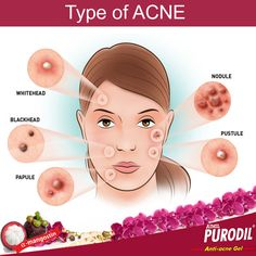 #AcneVulgaris is the medical name for common #acne -- the presence of #blackheads, #whiteheads, and other types of #pimples on the #skin.