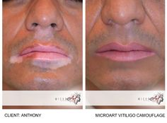 Before & After Photos of Vitiligo Camouflage by MicroArt Semi Permanent Makeup # . Permanent Eyeliner, Semi Permanent Makeup, Lip Contouring, Contouring And Highlighting, Different Eyeliner Styles, Tattoos To Cover Scars, Camouflage Makeup, Vitiligo Treatment, Natural Eyeliner
