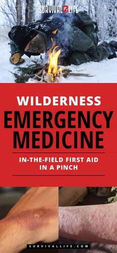 Wilderness Emergency Medicine | In-The-Field First Aid In A Pinch