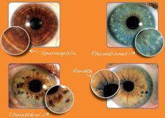 décodage iridologie