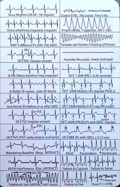 Features Of Common Rhythm Strips . tips ECG Highlights Nursing Student Tips, Critical Care Nursing, Nursing School Notes, Nursing Tips, Funny Nursing, Student Memes, Med Student, Student Nurse, Nursing Students