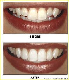 Having chipped, cracked or miss-aligned teeth? Call your Palo Alto dental bonding expert, Dr. Ala Din today to improve your smile with teeth bonding. Teeth Whitening Procedure, Teeth Whitening Remedies, Natural Teeth Whitening, Teeth Bonding, Dental Bonding, Cosmetic Dentistry Procedures, Veneers Teeth, Dental Fillings, Emergency Dentist