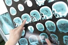 Ils découvrent une nouvelle forme de la maladie d'Alzheimer | Medisite