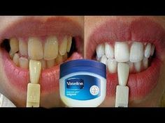 In Just 2 Minutes - Turn Yellow Teeth To Pearl White and Shine, Teeth Wh. In Just 2 Minutes - Turn Yellow Teeth To Pearl White and Shine, Teeth Wh. Teeth Whitening Remedies, Natural Teeth Whitening, Whitening Kit, Teeth Health, Healthy Teeth, Teeth Care, Skin Care, Teeth Whiting At Home, Teeth Bleaching