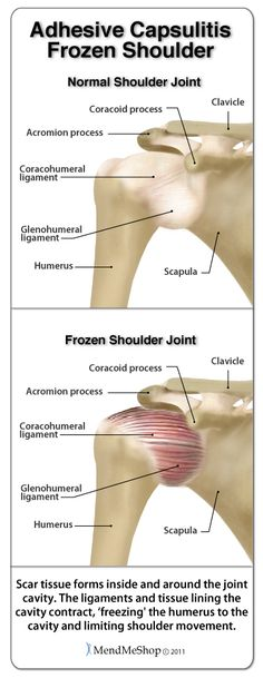 Great article on Frozen Shoulder Syndrome. So happy that mine is 99% well. But it took a LOT of painful physical therapy.