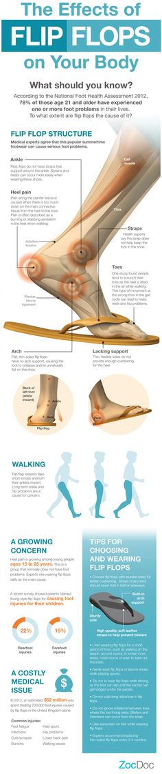 Effects of flip-flops on your body.