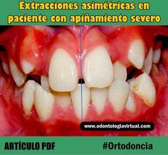 ortodoncia-apiñamiento-severo