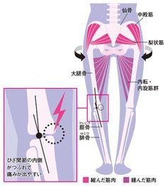 ひざ関節や脚全体に「外向き」の力がかかってゆがんでいるのが「O脚」。外向きにゆがむことによって硬直したお尻の筋肉をストレッチでほぐし、ひざ同士をくっつける筋力を高めよう。