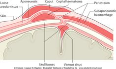 cephalohematoma vs caput succedaneum - ค้นหาด้วย Google