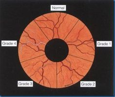 Image result for gunn sign hypertensive retinopathy