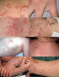 Symptoms of scabies