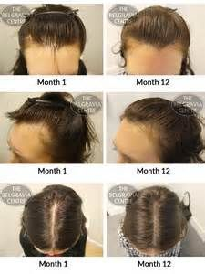 Natural treatment for women's hair loss
