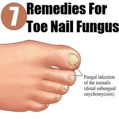 Toe Nail Fungus Remedies Check more at www.healthyandsmo