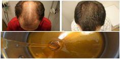 Este artigo apresenta uma receita antiga que tem ajudado milhares de pessoas curar a calvície e crescer mais cabelo. Ambos os sexos podem usar o remédio e só contém