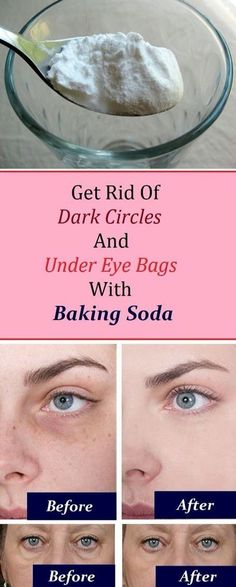 Eye bags: 1. Add 1 teaspoon of backing soda in a glass of hot water or tea and mix it well. 2. Take a pair of cotton pads and soak them in the solution and place them under the eye. 3. Let it sit for 10-15 minutes, then rinse it off and apply a moisturizer Practicing this procedure daily will render amazing results in just a week. by bleu.