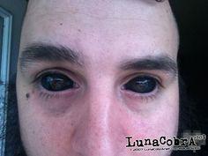 Black_eyeball_tattoo