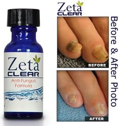 35 Best Topical Treatments Images Nail Fungus Toenail Fungus