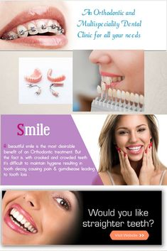 Orthodontics is a method of aligning the teeth. This may be done for cosmetic purposes or for addressing misalignment that can result in wear and tear of the natural tooth enamel. Dental Logo, Dental Care, Dental Business Cards, Baking Soda Teeth, Best Dental Implants, Dental Posters, Tooth Enamel, Smile Makeover