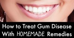 Remedies For Teeth Whitening How to Treat Gum Disease Naturally. 12 Home Remedies to Get Rid of Gum Disease. How to get rid of gum disease at home. Gum Disease Home Remedies. Teeth Whitening Remedies, Natural Teeth Whitening, Gum Health, Dental Health, Natural Remedies For Insomnia, Swollen Gum, Snoring Solutions, Healthy Teeth