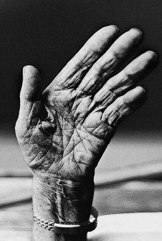 معاناة يد