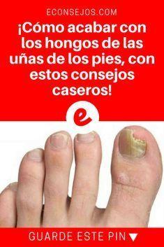 Hongos de las uñas de los pies | ¡Cómo acabar con los hongos de las uñas de los pies, con estos consejos caseros!