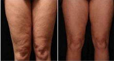 How to Get Rid of Cellulite on Legs? How to get rid of cellulite on legs? Home remedies for cellulite on legs. Treat cellulite on legs fast and naturally. Ways to cure cellulite on thighs. Cellulite Scrub, Cellulite Remedies, Reduce Cellulite, Cellulite Cream, Cellulite Exercises, Fitness Workouts, Yoga Fitness, Anti Cellulite, Body Scrubs