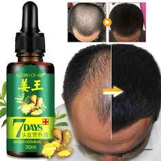 Ginger Hair Growth, New Hair Growth, Vitamins For Hair Growth, Hair Growth Products, Skin Products, Beauty Products, Oil For Hair Loss, Anti Hair Loss, Hair Essentials