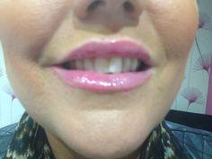 www.spabannockburn.co.uk   Dermal Fillers Juvederm Ultrasmile to enhance lips