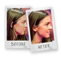 ALERT! Home remedies and facial exercise to lose double chin in two weeks. Find out how to lose double chin quickly with exercises and home remedies!