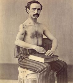 The American Civil War was the opportunity for significant advances in battlefield trauma medicine. In this photo, an ex soldier poses for the camera with his perforating upper arm wounds. He was certainly lucky to be alive.