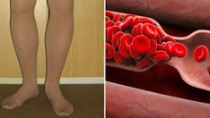 8 Warning Signs Of a Potential Blood Clot That You Shouldn't Ignore - Health Moment USA Cartilage, Hormone Replacement Therapy, Aspirin, Blood Vessels, Feel Tired, Warning Signs, Heart Health, Health Facts, Health Advice