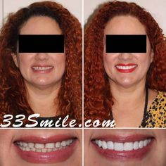 Were loving this recent case! 8 prepless veneers really filled in and brightened up our patients smile up! Schedule online at 33smile.com #drjamsmiles #33Smile . . All photos and video of patients are of our actual patients. All media is the of Cosmetic Dental Associates. Any use of media contained herein is prohibited without written consent. . . #satx #satxdentist #dentistry #goals #smile #teeth #instagoals #transformationtuesday #beforeandafter #whiteteeth #perfect #transformation #teeth Insta Goals, Dental Cosmetics, Smile Teeth, Dental Procedures, Cosmetic Dentistry, Transformation Tuesday, Beautiful Smile, Schedule, Photo And Video