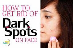 Get rid dark spots face just 1 ingredient