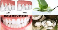 Gum Disease: The Silent Killer, 8 Home Remedies to Cure It Naturally Health And Nutrition, Health Tips, Health Care, Home Remedies, Natural Remedies, Fitness Diet, Health Fitness, Naturopathy, Dental Care