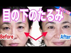 Yoga Facial, Good For Her, Gua Sha, Health And Beauty, Anti Aging, Health Fitness, Hair Beauty, Workout, Face