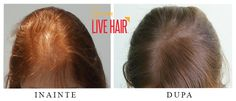 Live Hair Long Hair Styles, Live, Fitness, Beauty, Long Hairstyle, Long Haircuts, Long Hair Cuts, Beauty Illustration, Long Hairstyles