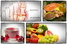 If you suffer from gout, you can benefit a lot from this natural remedy