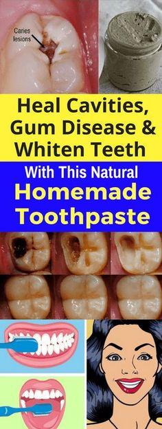 Heal Gum Disease, & Whiten Teeth & This Natural Homemade Toothpaste! Heal Gum Disease, & Whiten Teeth & This Natural Homemade Toothpaste ! Teeth Health, Healthy Teeth, Oral Health, Dental Health, Dental Care, Dental Hygienist, Dental Implants, Health Diet, Kids Health