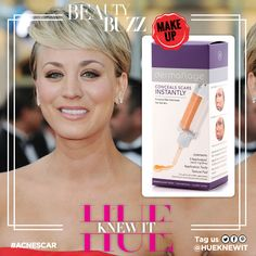 Kelly Cuoco and the battle against acne scars. What to do. www.dermaflage.com
