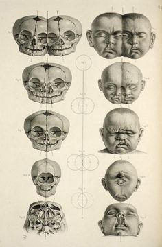 Dissecting a Human Head Through Anatomical Illustrations Macabre - Cabinet of CuriositiesMacabre - Cabinet of Curiosities Anatomy Drawing, Anatomy Art, Skull Anatomy, Human Anatomy, Animal Anatomy, Illustrations Médicales, Medical Illustrations, Medical Drawings, Conjoined Twins