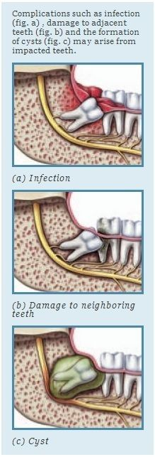 """An impacted tooth above the gum line may create a """"food trap"""" that is difficult to brush or floss and is likely to lead to decay. Wisdom teeth, also known as third molars, are the last teeth to erupt in your mouth. Dental Assistant Study, Dental Hygiene School, Dental Humor, Dental Hygienist, Oral Hygiene, Dental World, Dental Life, Dental Health, Oral Health"""