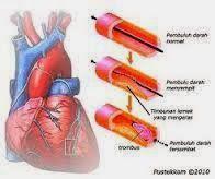 obat herbal jantung koroner obat tradisional jantung koroner pengobatan jantung koroner gejala jantung gejala sakit jantung gejala jantung koroner gejala penyakit jantung koroner gejala penyakit jantung penyakit jantung koroner obat jantung koroner