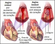 Angina Pectoris, Chest Pain Causes, Symptoms and Treatment Information Cardiovascular Nursing, Angina Pectoris, Heart Anatomy, Heart Healthy Diet, Heart Muscle, Too Cool For School, School Stuff, Circulatory System, Medical Information