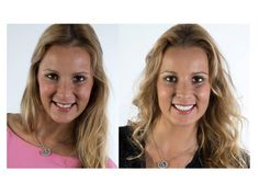 Joke voor en Joke na veneers http://www.glamsmile.com/benl/veneers/facing-tanden - Joke avant et après la pose des facettes http://www.glamsmile.com/befr/facettes/