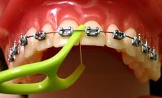 Great way to floss with braces!