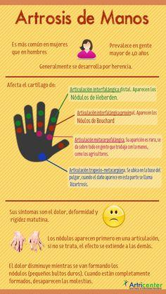 En la siguiente infografía te mostramos las principales características de la artrosis de manos:¿Conoces otra característica?También te puede interesar…¿Qué es la Artrosis?Artrosis de cadera (Coxar…