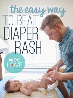 weeSpring parents love Dr. Smith's diaper rash cream. It's safe, super effective, and has been quickly treating diaper rash for decades.