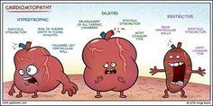 Cardio myopathy